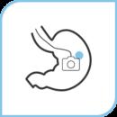 胃カメラ (経鼻内視鏡)